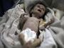 غارديان: صور صادمة لرضيعة سورية قتلها الجوع