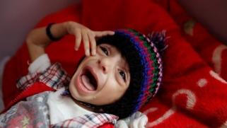 اليمن.. فواجع الحرب ورزايا الجوع والمرض