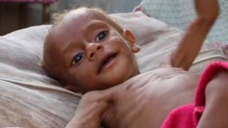 واشنطن تعرقل قرارا دوليا بشأن المجاعة في اليمن