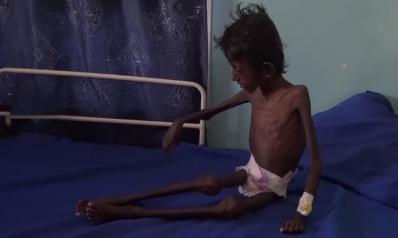 هذا ما جنته عليه حرب اليمن.. عبد الرحمن عمره 5 سنوات ويزن 5 كلغ