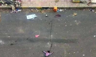 #طفلة_الماء شاهدة على جرائم ميليشيا الحوثي