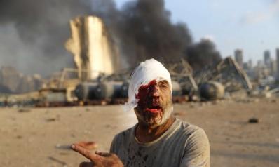بيروت مهددة بأزمة إنسانية شبيهة بمخلفات الحرب الأهلية